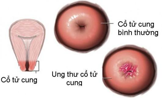 Những loại ung thư nào cần đi khám tầm soát ung thư sớm? - Ảnh 4