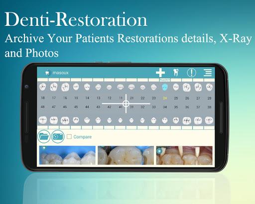 Denti-Restoration