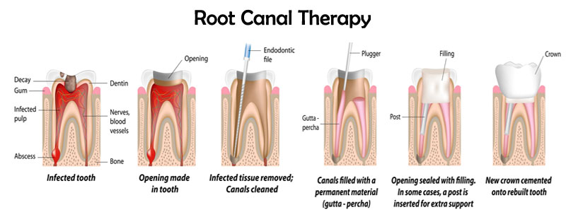 root canal dentist yonkers