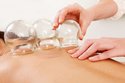 back receiving cupping therapy