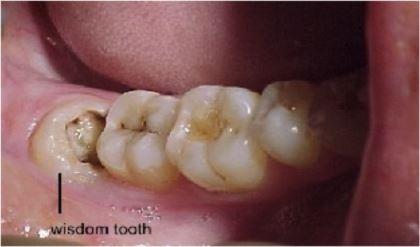 Every NSF's Essential Wisdom Tooth Guide!