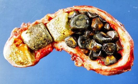 Natural Cure for Gall Stones