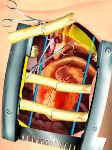 9 Open Heart Surgery Simulator App screenshot