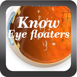 Know Eye floaters Disease