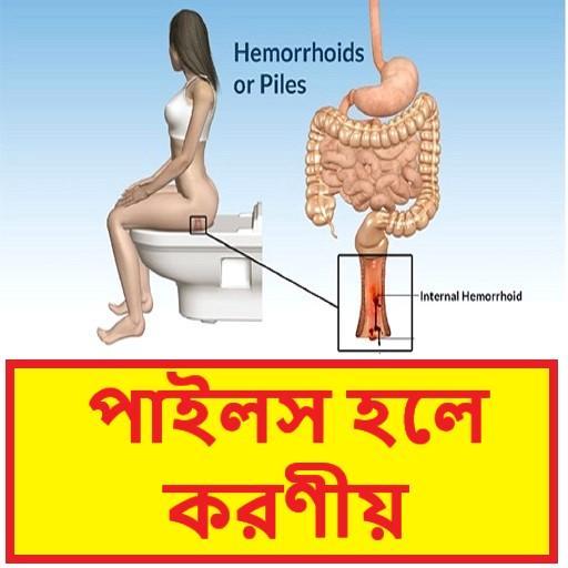 পাইলস হলে করণীয় - Piles Treatment