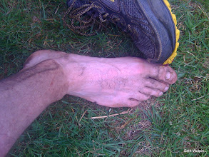 Photo: Obligatory cankle shot - ran with no insoles and a missing toenail to get  the perfect shot