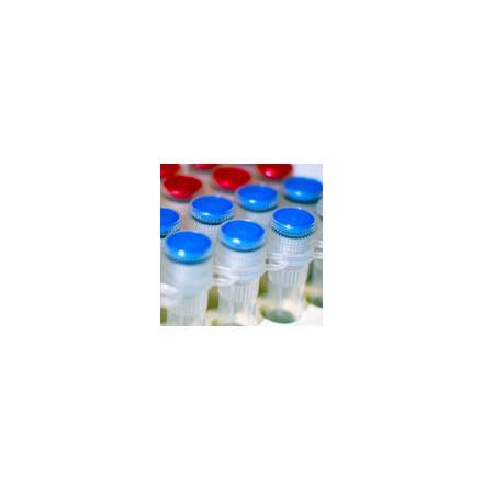 Heat Labile dsDNase (HL-dsDNase)