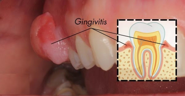 Natural Secrets for Curing Gingivitis at Home: No More Swelling, No More Bleeding!