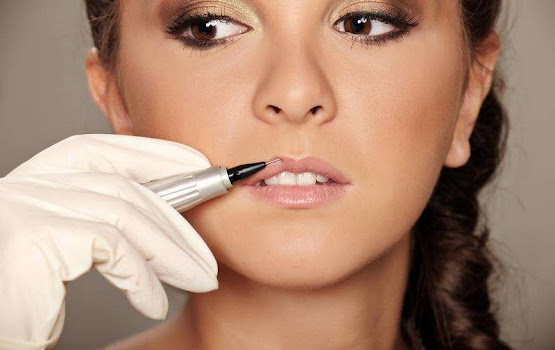 Lip fillers at Neo-Derm