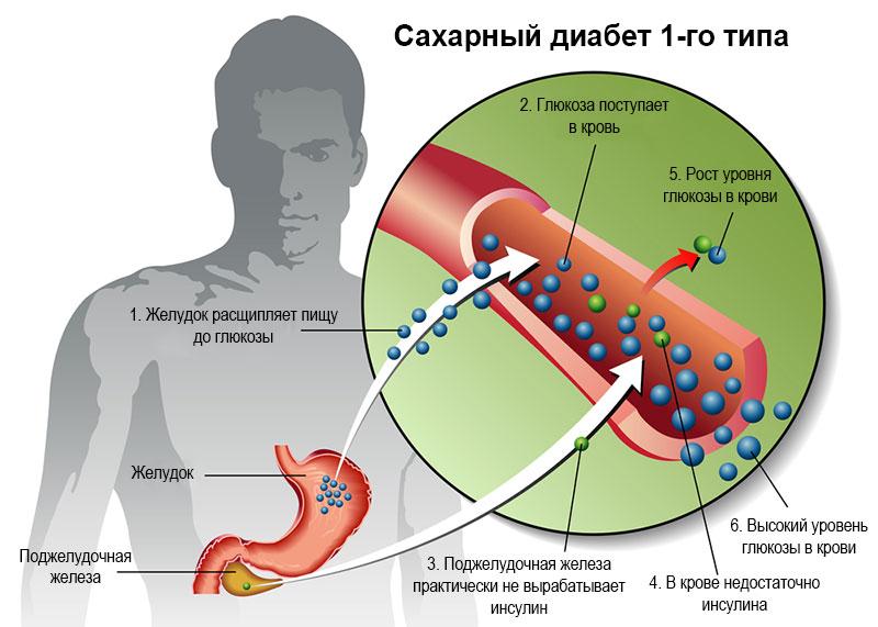 Сахарный диабет 1 типа, или врожденный: лечение инсулином; диета