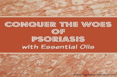Treating Psoriasis With Essential Oils