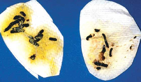 Bilirubin in the urates, an indication of hepatopathy