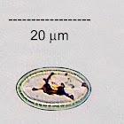 Epilithic Diatom