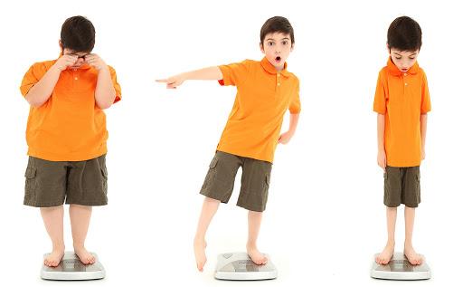 Thế nào là suy dinh dưỡng thể teo đét ở trẻ em
