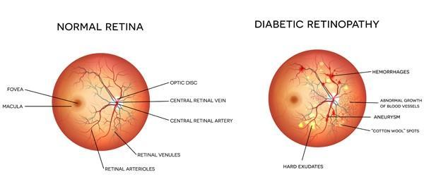 About Diabetic Retinopathy – Zoomax Low Vision Aids