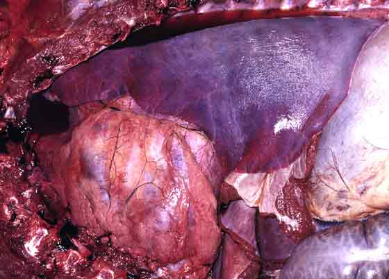 Severe diffuse atelectasis. The lung is reduced in size, airless, plum, coloured and rubbery rather than firm.