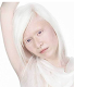Download Albinos People Wallpapers For PC Windows and Mac