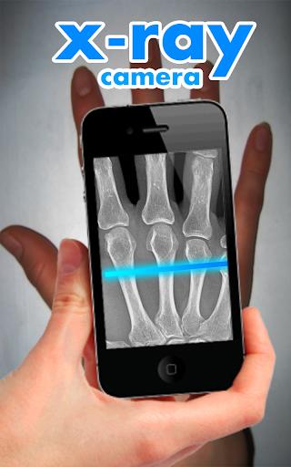 X-Ray Camera Fingers