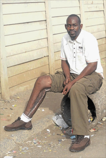 MAIMED: Simon Ramolongwana was shot while on duty.  PHOTO: VELI NHLAPO