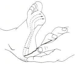 Figure 73.1. Testing the plantar reflex.