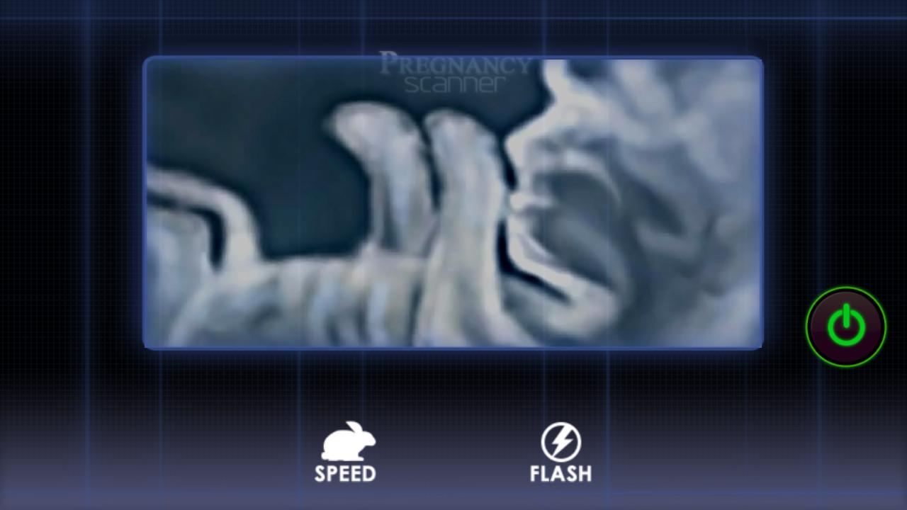 Pregnancy Test Prank- screenshot