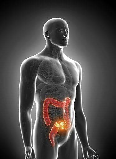 Colorectal cancer is spreading among black men too. /123RF