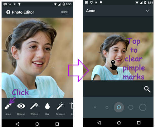 Face Acne Remover Photo Editor App 2.0 screenshots 2