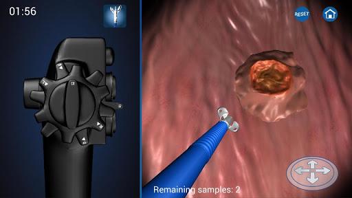 玩免費醫療APP|下載Endoscopy 3D (Free) app不用錢|硬是要APP