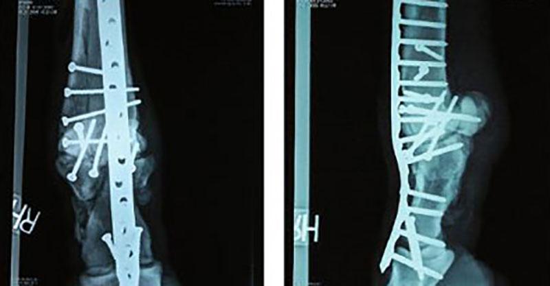 gymnastics-broken-bone