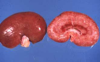 Nefritis intersticial y fibrosis como resultado de una infección crónica con L. canicola. A la izquierda: superficie renal; áreas más claras representan fibrosis; sobre la derecha: corte de superficie del mismo riñón.
