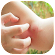 Home Remedies for Insect Bites icon