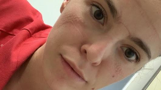 La almeriense Carmina Lucas, con marcas en su rostro tras una jornada de trabajo.