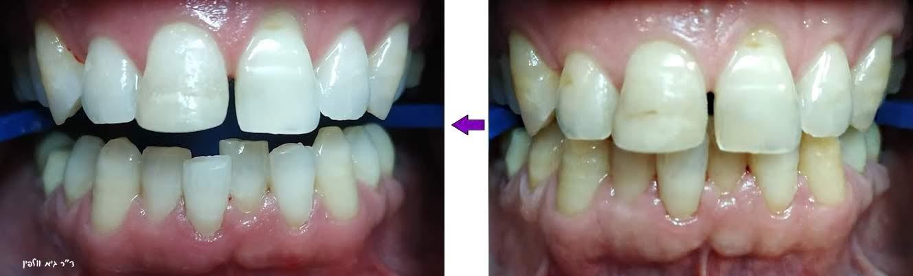 הלבנת שיניים גיא וולפין אסתטיקה של החיוך ZOOM