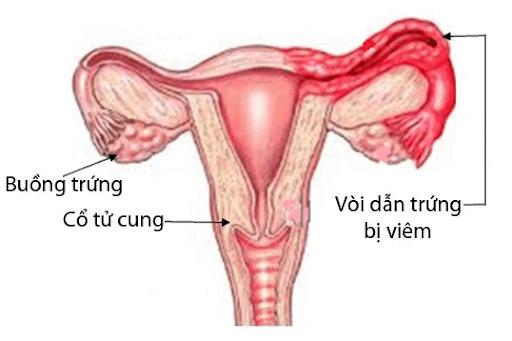 Viêm tắc vòi trứng ảnh hưởng xấu đến khả năng sinh sản phụ nữ