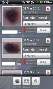 Doctor Mole - Skin cancer app - screenshot thumbnail