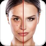 Acne Free : Pimple Remover Icon