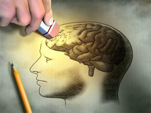 Biến chứng của huyết áp thấp gây mất trí nhớ