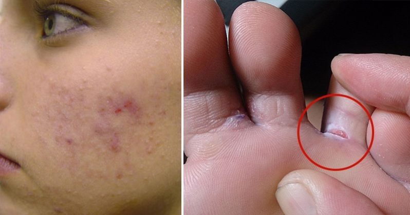 The Essential Oil that May Help Nail Fungus, Dandruff, and Athlete's Foot