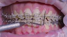 Orthodontics – 1m 36