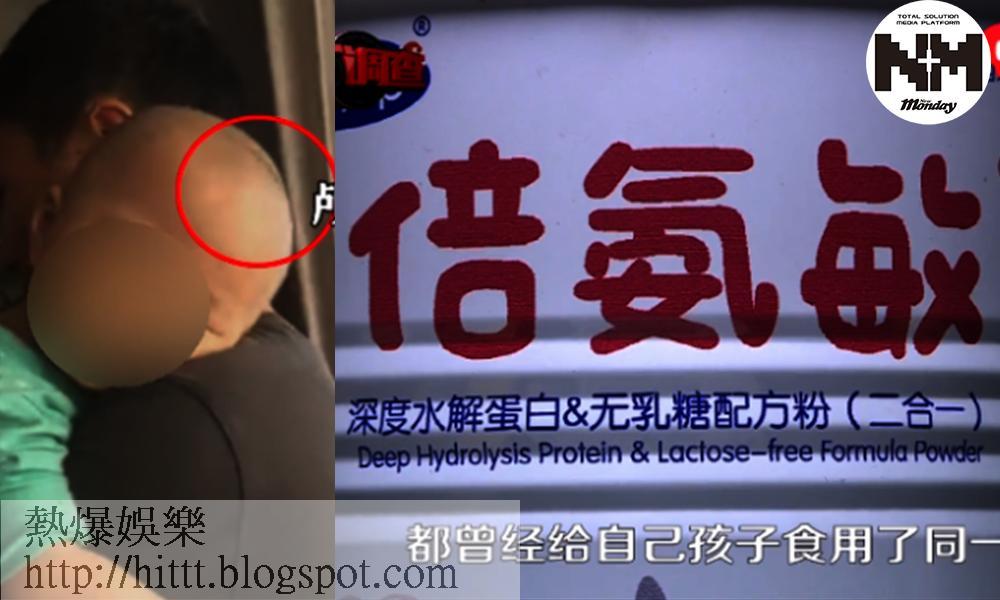 毒奶粉重現!湖南幼童生長停滯變「大頭娃娃」狂拍頭    網友:害人不淺! 時事新聞台