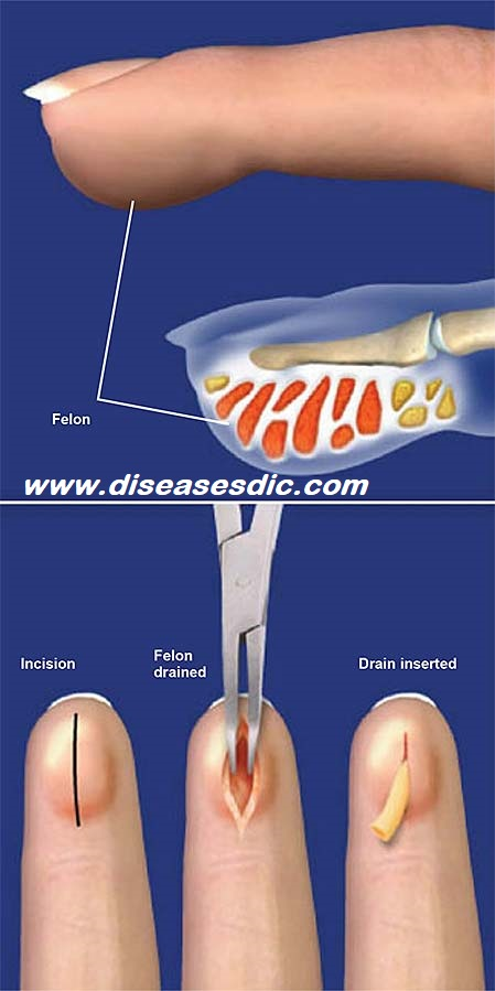 Finger Infection – Causes, Treatment and Prevention  -