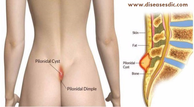 Pilonidal Cyst - Causes and Treatment -