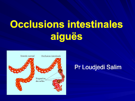 Occlusions intestinales aiguës.ppt