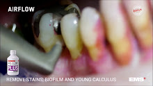 AirFlow Young Biofilm – 3m 36s