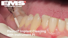 AirFlow Implant Cleaning - 1m 6