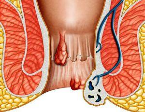 sintomi delle emorroidi
