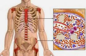 Pengobatan Leukemia Mieloid