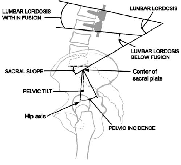 Sagittal lumbar and pelvic parameters from the standing lateral ...