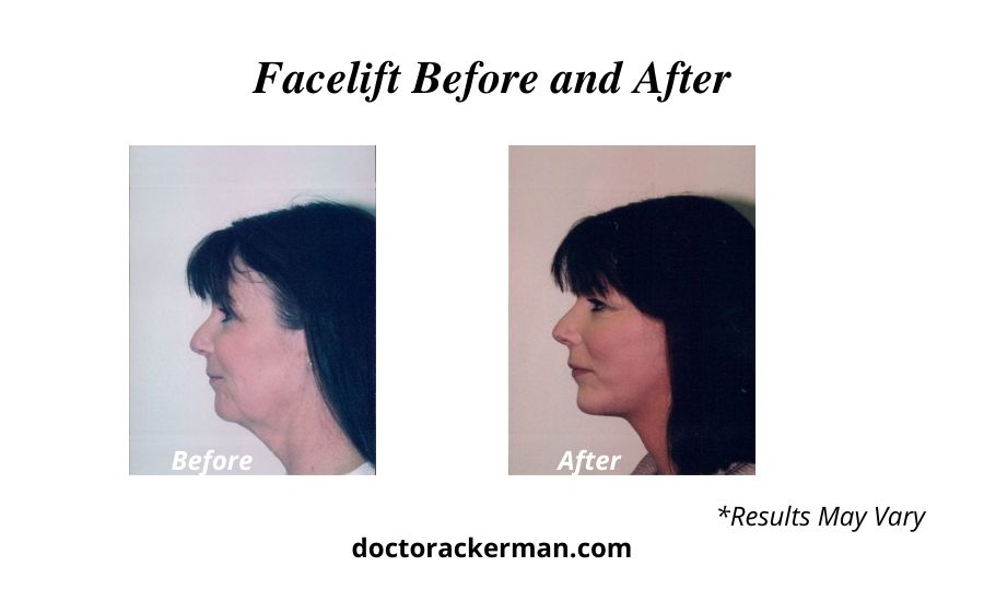 Before and after photos of a facelift surgery patient from Newport Beach, CA.