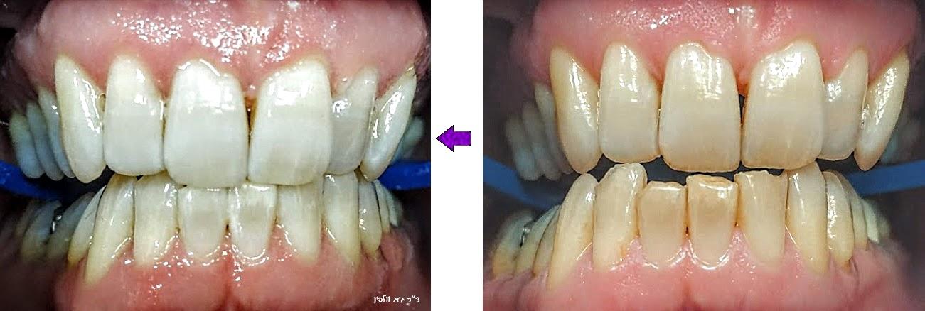 """ד""""ר גיא וולפין - אסתטיקה דנטלית ושיקום הפה: הלבנת שיניים זום בשעה במרפאה"""